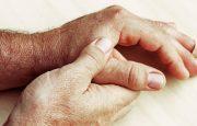 Osteoarthritis Flare-Up