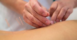 Person having acupuncture done on their back
