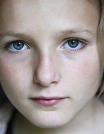 Osteoarthritis in Children
