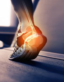 Osteoarthritis and Rheumatoid Arthritis: What's the Difference?
