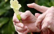 Arthritis Trigger Finger