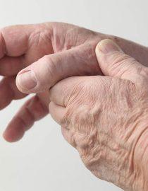 What Is Osteoarthritis?